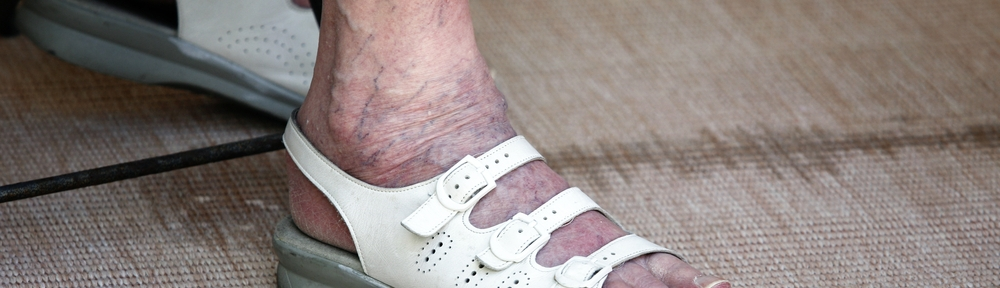 elderly woman's feet, walking