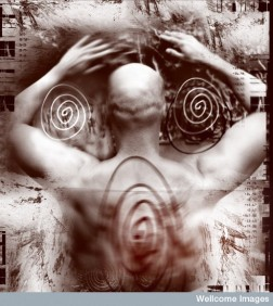 Artwork - pain and disturbance Credit: Chris Nurse. Wellcome Images